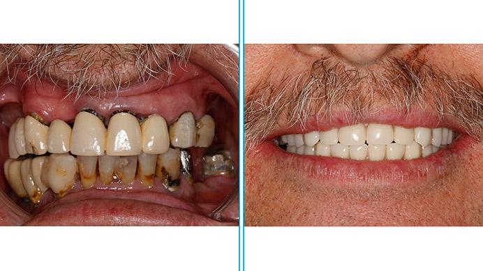 antes despues implantes dentales de carga inmediata