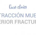 Caso clínico: Extracción de una muela superior fracturada