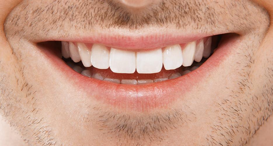 consejos para saber que es la periodontitis dental