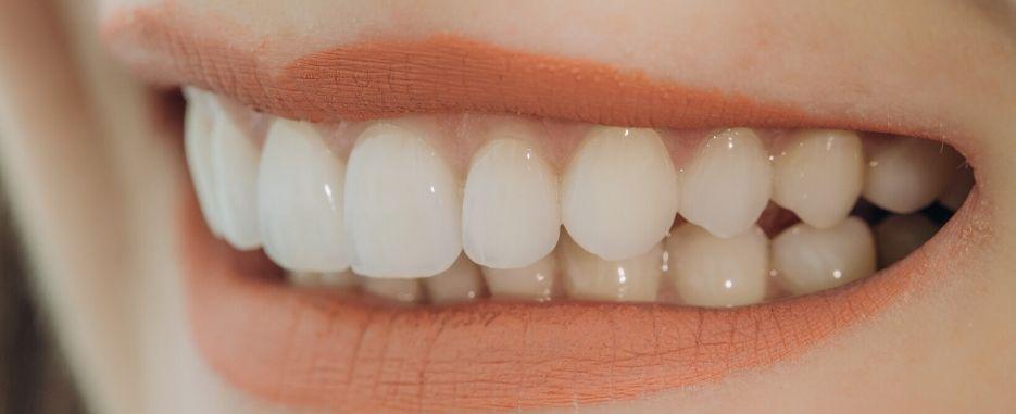 cuales son las ventajas de los implantes dentales de carga inmediata