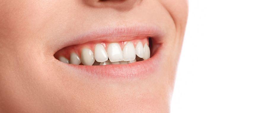 cuanto tardara en cicatrizar un implante dental