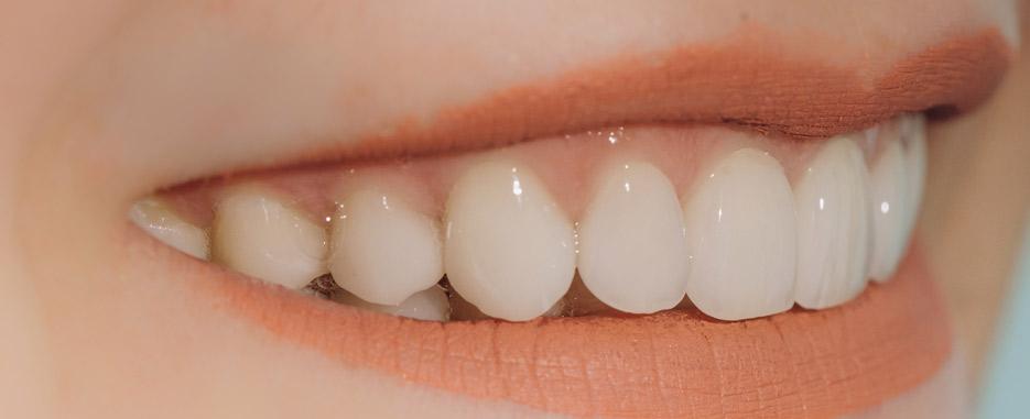 cuantos implantes se necesitan para la mandibula