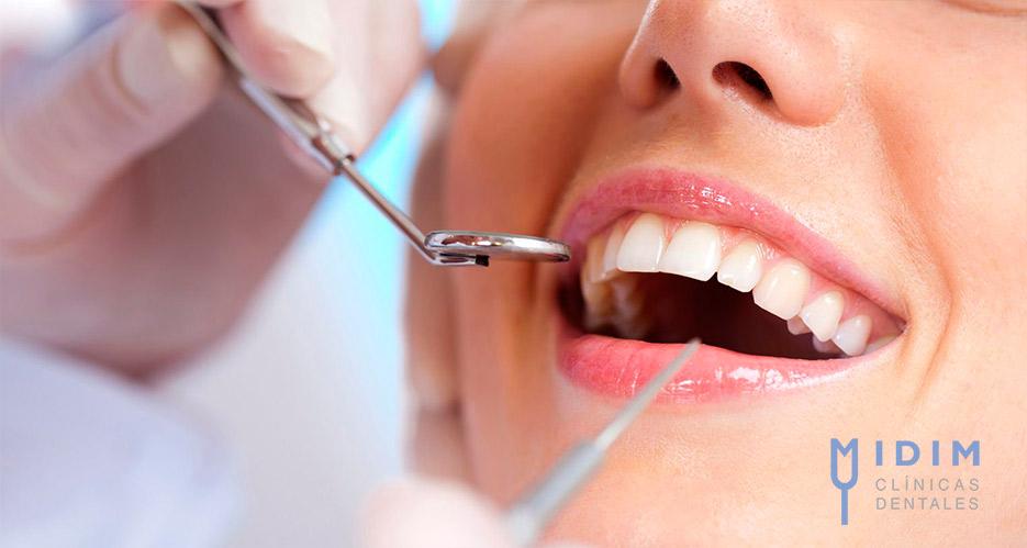 Donde ponerse implantes dentales en Valencia Capital