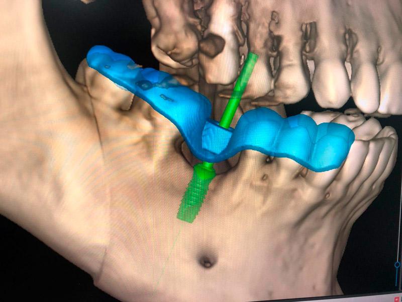 impresion 3d de guias quirurgicas para implantes dentales