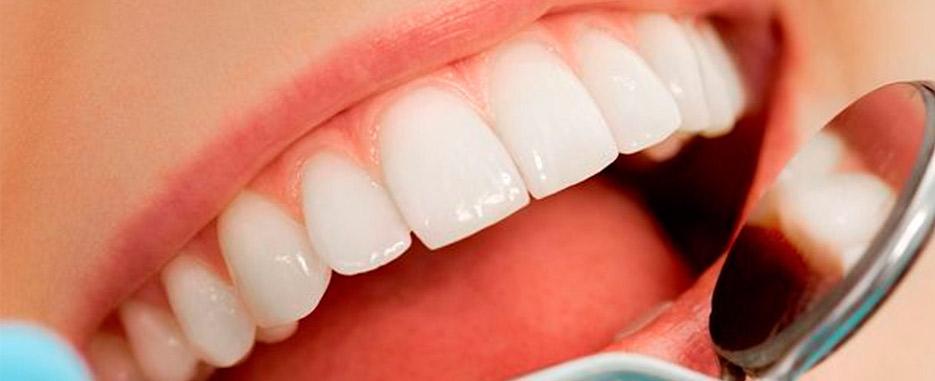 limpieza implantes dentales