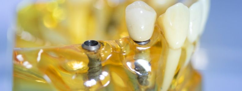 tipos de carga protesica en implantologia dental
