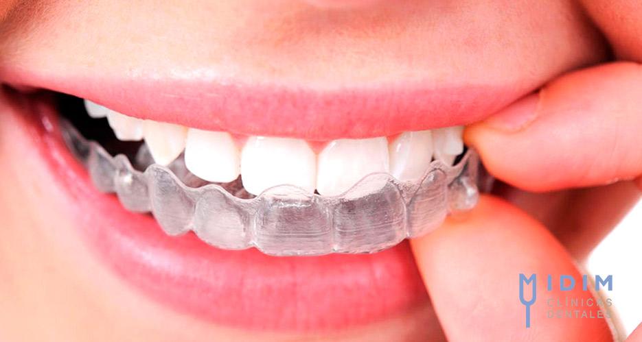 Por que las ferulas de bruxismo debe realizarlas el dentista