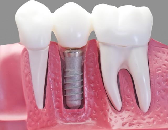 precio implantes dentales en valencia