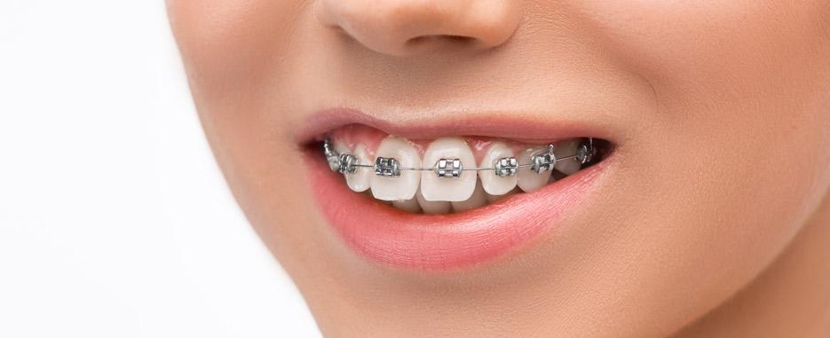 que es el stripping dental