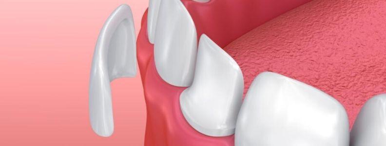 que son las carillas dentales, para que sirven y tipos