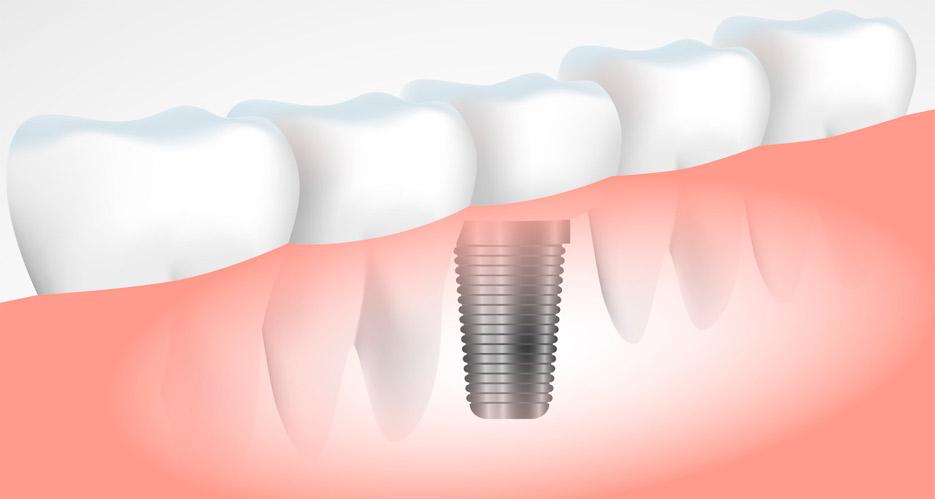 todo sobre la duracion del tratamiento de implantes dentales