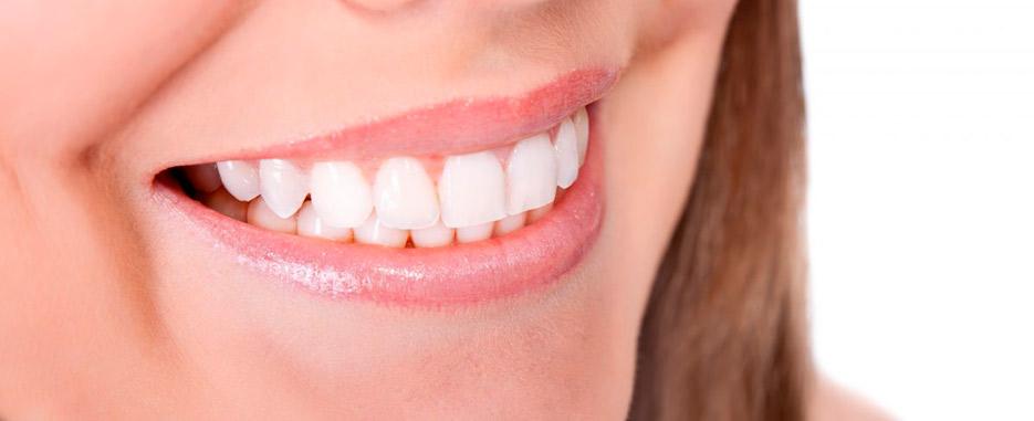 ventajas de los implantes dentales inmediatos